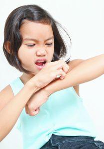 девочка царапает руку