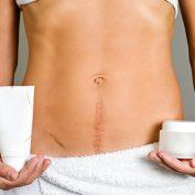 Как убрать шрам после кесарева сечения? — 5 способов