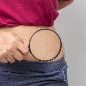 Как предотвратить растяжки во время беременности? – 5 простых советов