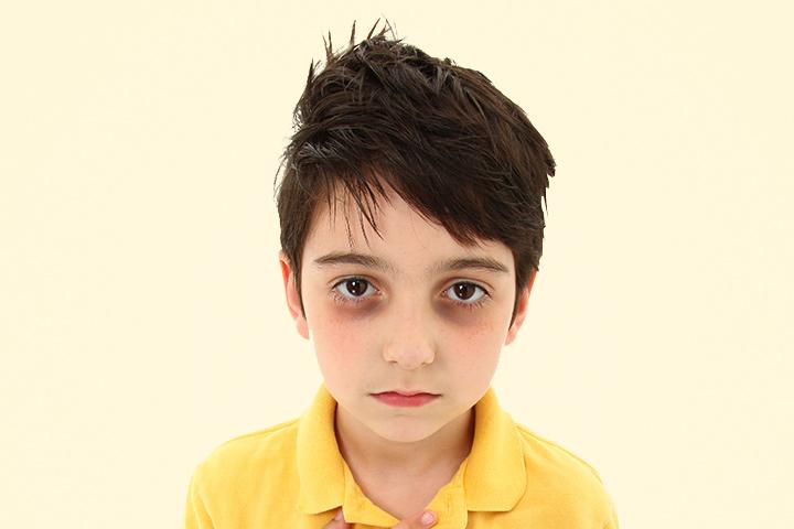 О чем говорят темные круги под глазами у ребенка? – 4 причины, требующие действий