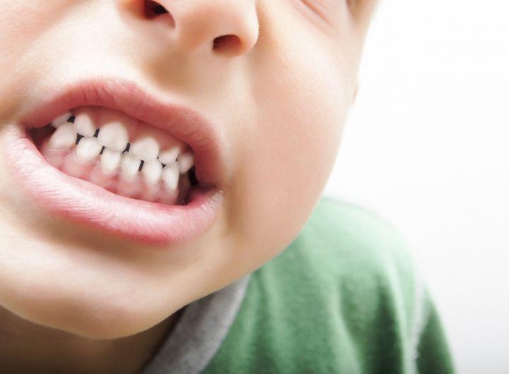 Почему ребенок кусается и что делать? 5 главных причин у разных возрастов и их решения